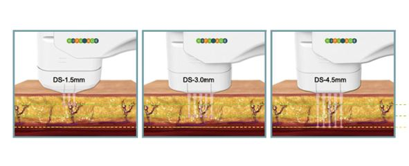 DIA-GA ディアーガ ハイフ+サーマルフラクショナル 美容機器
