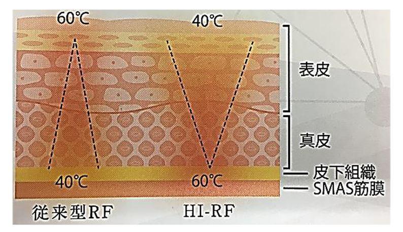 ビービー2(BE-BEⅡ)5機能 トータルケアマシン キャビテーション HI-RF 吸引